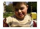 Down sendromlu çocukların özellikleri