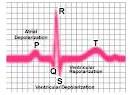 Sahibinden bir kalp anjiyosu öyküsü