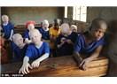 Tanzanya'da kanayan bir yara, Albinolu cinayetleri