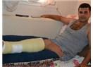 Foça'daki patlamada yaralanmıştı..!