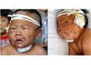 Bebeğini Makaslayan Çinli Anne