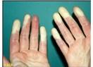 Raynaud Fenomeni hastalığına yakalanan kadın devamlı eldiven giyiyor