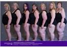 Lipödem ve Obezite Birlikte Görülebilir mi?