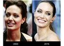 Neştersiz Estetikle Angelina Jolie Gülüşü