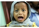 Bir Milyon Kişi Kolera ile Karşı Karşıya