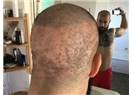 Saç Ekimi Yaptırırken Saçlarınızdan Olmayın! Operasyonunun Riskleri ve Bilinmeyenleri