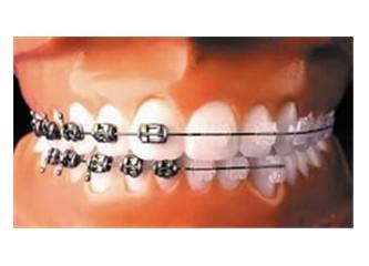 Çarpık dişlerden kurtulun!