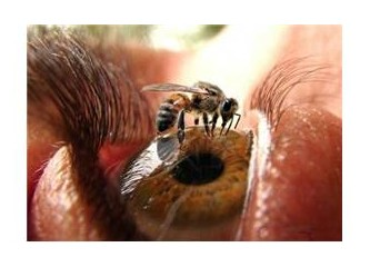 Arı sokması tadında ya da acısında..