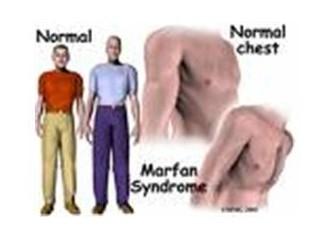 Sendromlar
