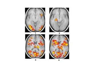 Yalan makinesi: fMRI