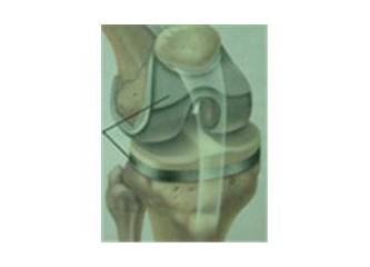 Diz protezlerinden sonra rehabilitasyon (VIII - C)