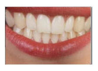 Dişçi mi, Diş Tabibi mi, Diş Hekimi mi?