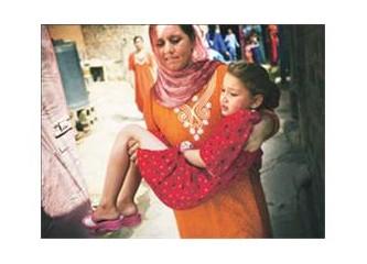 Türkiye'de Kadın Sünneti-Karpuz Kabuğu