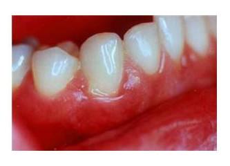 Dişeti hastalıkları ve tedavi yöntemleri