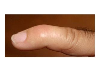 Mallet Finger ( Çekiç Parmak )