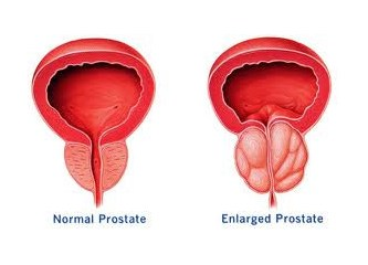 Prostata iyi gelen bitkiler & Prostat büyümesi (BPH) tedavisi