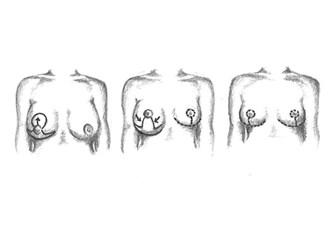 Göğüs küçültme Estetiği