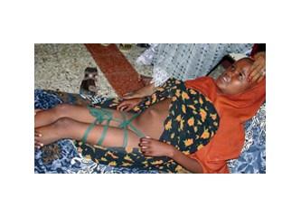 Müslüman kız çocuklarını kim sünnet eder?