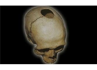 10.000 yıl önce Anadolu'da beyin ameliyatı yapılıyordu!