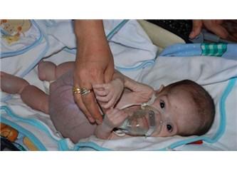 Yusuf bebek hayata tutunmak için bizlere elini uzatıyor