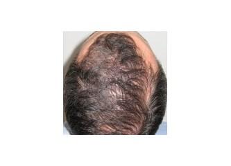 Yaşın Saç Ekiminde etkisi
