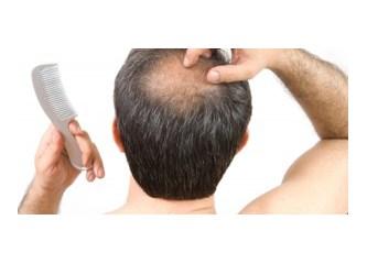Saç dökülmesi için doktor tavsiyesi