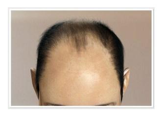 Saç ekimi iyileşme süreleri