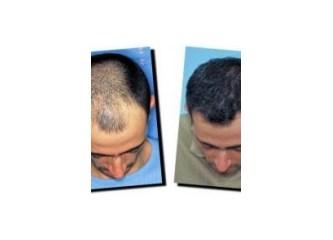 Saç sıklaştırma yöntemleri