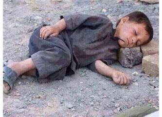 Suriye'deki bu çocuğun sorumluluğu İttihad-ı İslam'ı istemeyenlerin boynunadır!