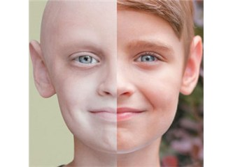 Oğlum kanser mi?