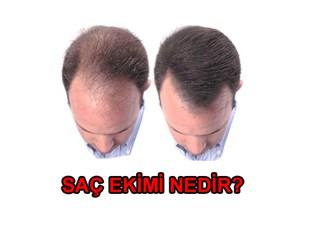 Saç ekimi artık çok kolay