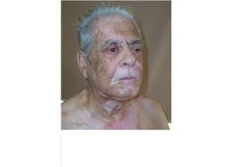 La pigmentation sur la peau les souillures sur le ventre