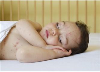 Eritema Enfeksiyozum - Beşinci Hastalık