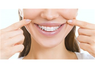 Hızlı diş teli tedavisi