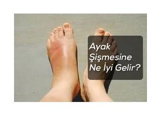 Ayak şişmesine karşı tavsiye edilen doğal tedavi yöntemleri...