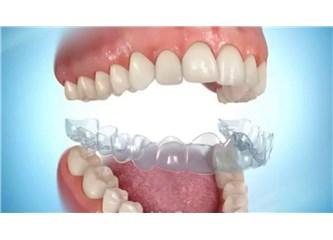 Diş teli fiyatları Devlet karşılar mı?