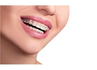 Diş teli takmadan dişler düzelir mi