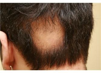 Saç kıran sonrası dökülen saçlarımız geri gelir mi?