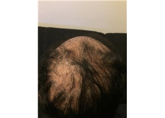 Skarlı Saç Kıran (Alopesi Areata) Nasıl Tedavi Edilir?