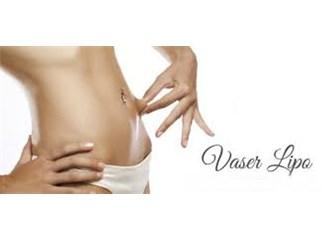 Vaser Liposuction veya Vaser Lipo Nedir?