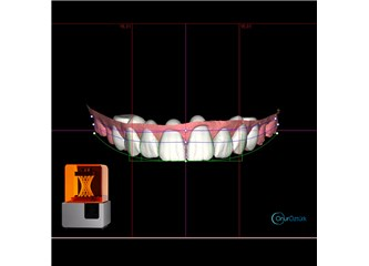 Diş Hekimliğinde 3 Boyutlu  Baskı Yöntemi