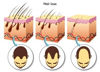 Saç Oto Klonlama Nedir? Saç Botoksu Nedir?  Saç Dolgusu Nedir?  İşe Yarar mı?