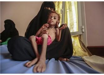 """Yemen: """"Acı Çeker ve Sonu Yoktur"""""""